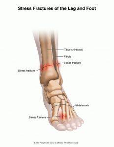 foot stress reaction
