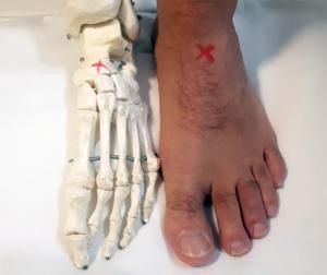 stress reaction foot