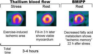 thallium stress test